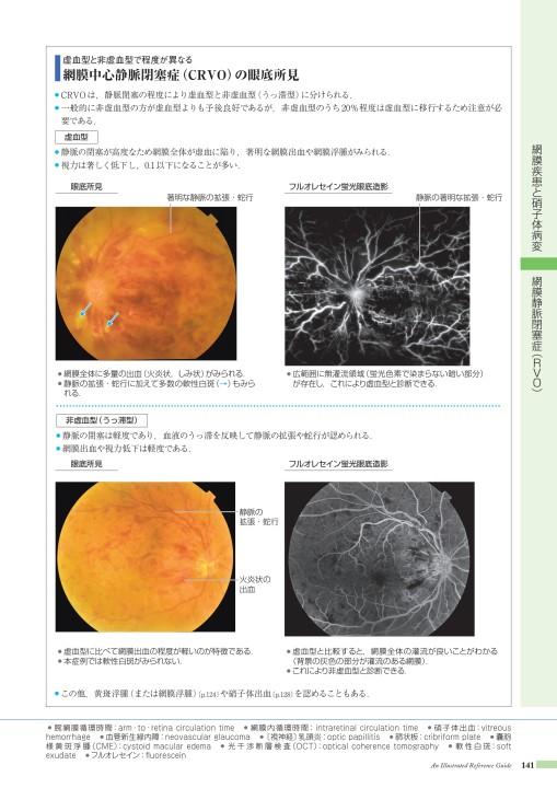 中心 静脈 閉塞 症 網膜