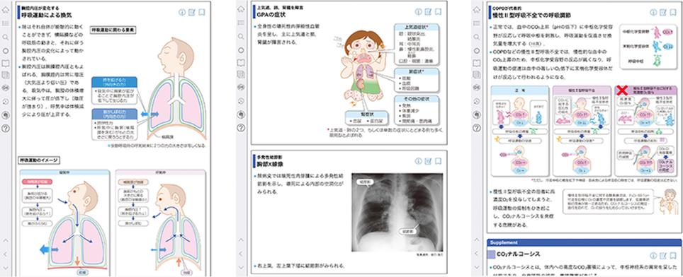 vol.4 呼吸器