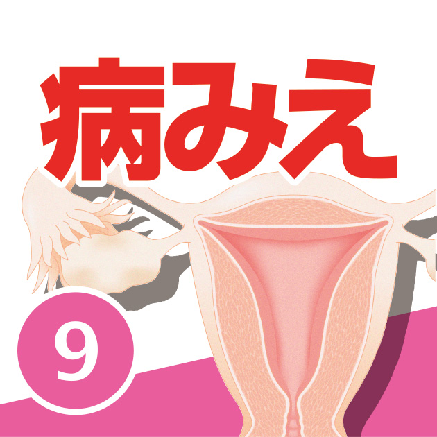 病気がみえる vol.9 婦人科・乳腺外科