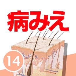 病気がみえる vol.14 皮膚科